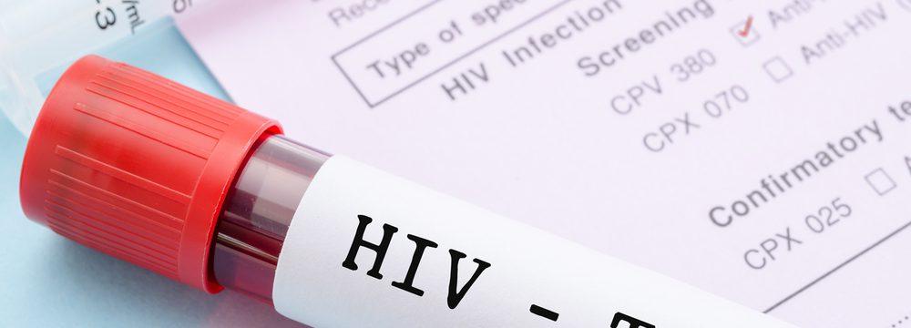 Conheça os Direitos Fundamentais dos Portadores do Vírus HIV